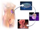 IVF-fertilizare-in-vitro